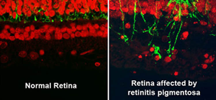 Retina scan comparison of rods and cones in normal vision and retina affected by retinitis pigmentosa